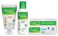 Acnes Treatment Kit - Clarifying Face Wash, Toner & Point Gel 180 gm